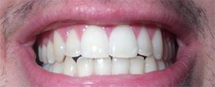 teethPic